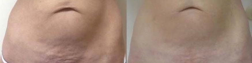 Thermitight before and after brooklyn ny for Picosure tattoo removal michigan