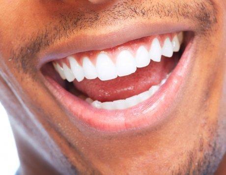 Tampa Smiles