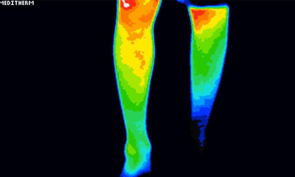 Thermography of the legs