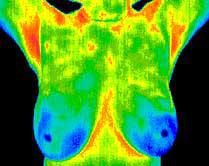 thermography examples