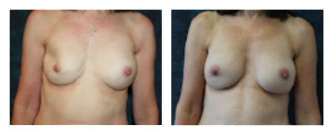 Breast Implant Removal & Replacement before & after