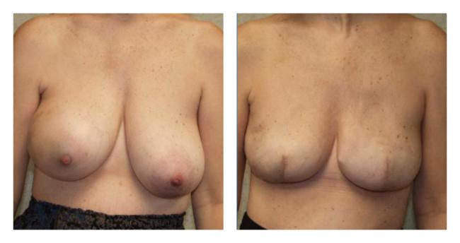 Breast Reconstruction before & after
