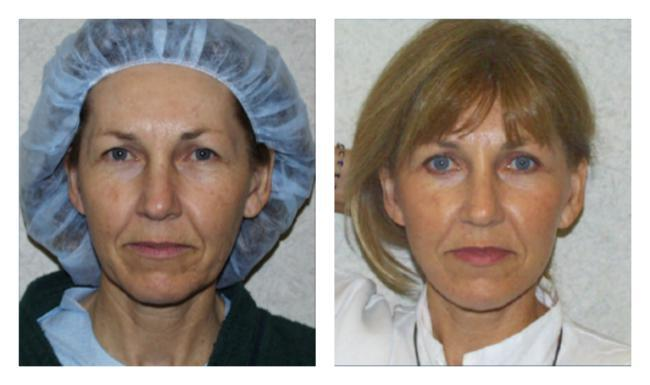 Facial surgeries before & after