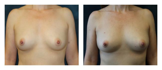 Non-surgical breast augmentation before & after