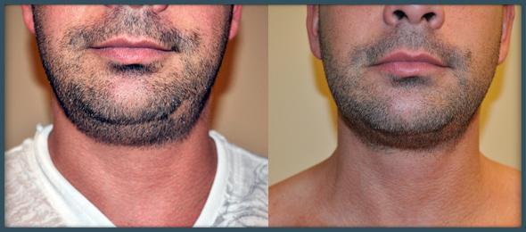 Submentoplasty Or Neck Liposuction San Francisco Ca Aesthetic Surgery Center