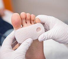 Warts Specialist - Katy, TX & Cypress, TX: Texas Dermatology
