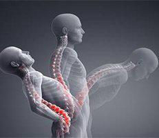 X-Ray Motion Study