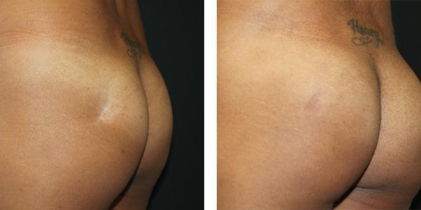 Reconstructive cases before & after