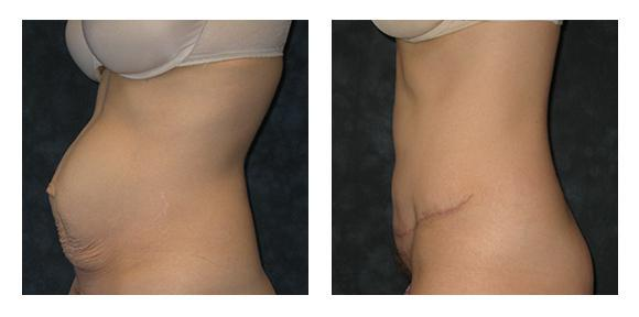 Tummy Tuck/ Mommy Makeover before & after