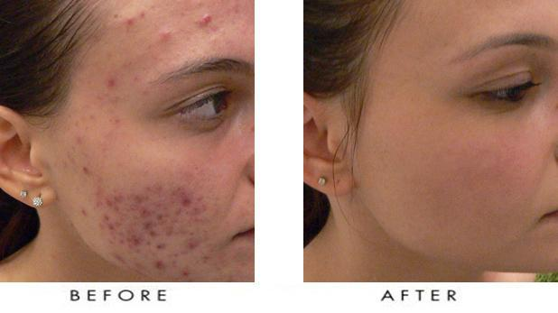 Acne Treatment Post Accutane Pine Belt Dermatology Amp Skin