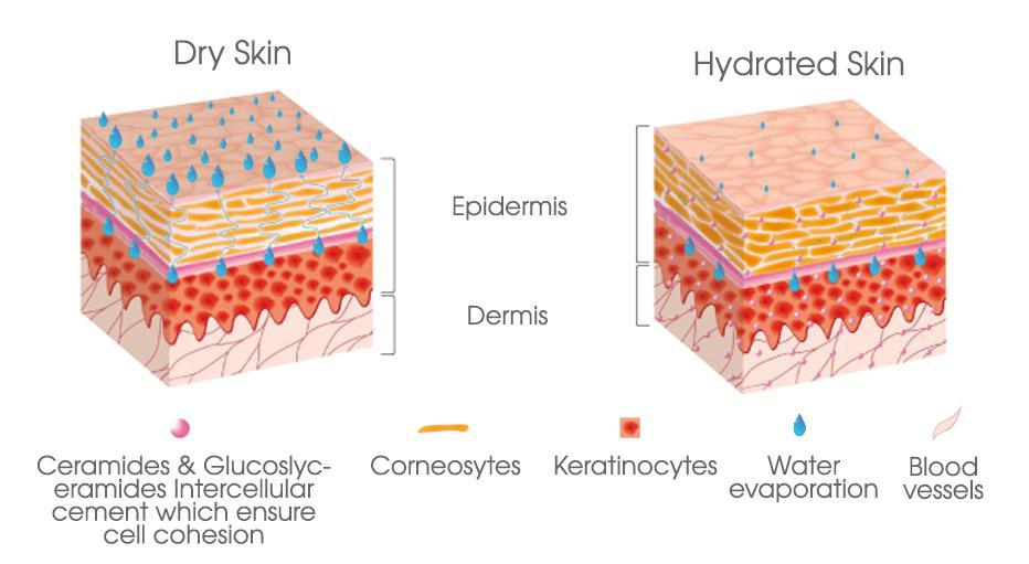 Is That Patch Of Dry Skin The Winter Itch Or Eczema Pine Belt Dermatology Skin Cancer Center General Cosmetic Dermatologists