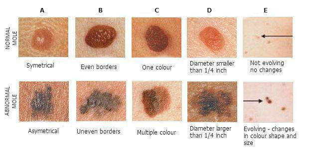 Abcdef S Of Changing Moles Melanoma Pine Belt Dermatology Skin Cancer Center General Cosmetic Dermatologists