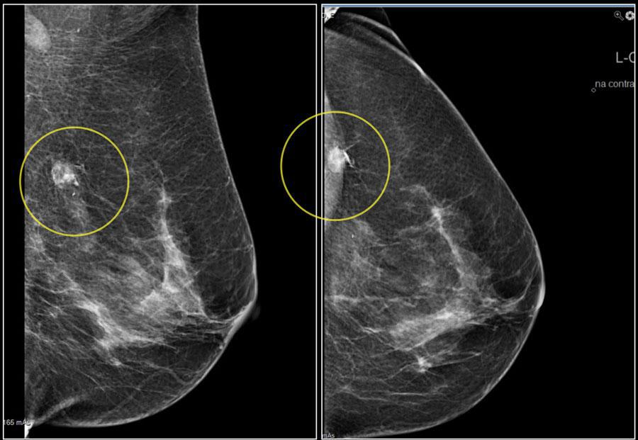 False Mammograms Are More Common Than You Think Dennis R Holmes