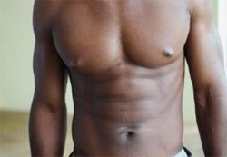 Male breast reduction doctor scottsdale