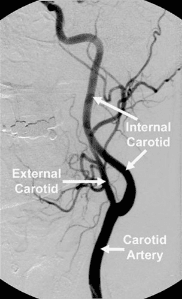 what is a stenosis in artery