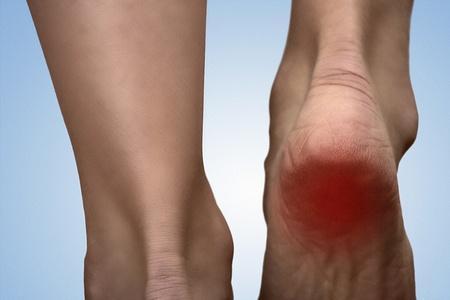 Healing Heel Pain