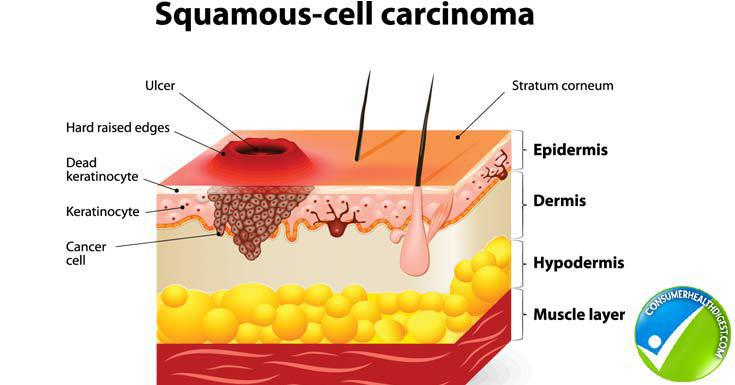 Squamous Cell Carcinoma When should you worry Pine