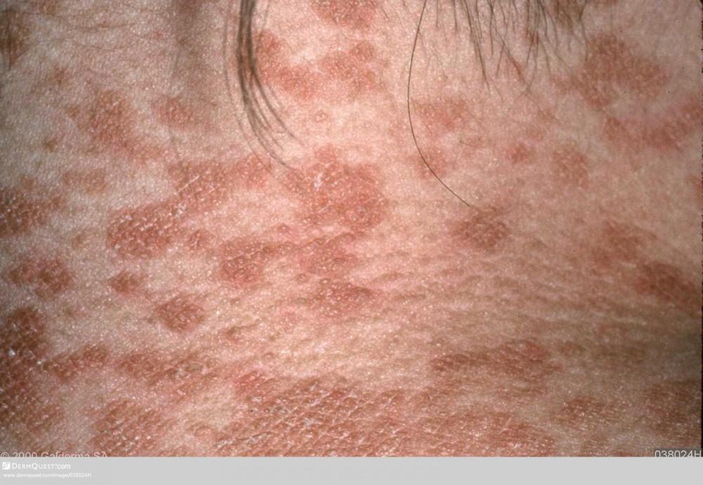 Tinea Versicolor: Glendale Dermatology: Dermatologists