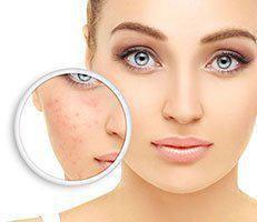 Rosacea Specialist - White Plains, MD: Charles County