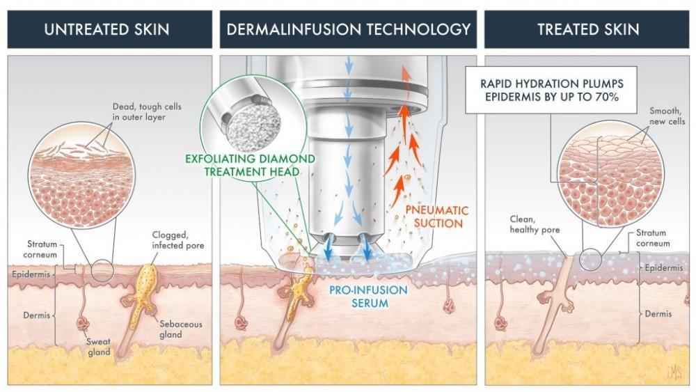 What is Silkpeel Dermalinfusion?: Glendale Dermatology