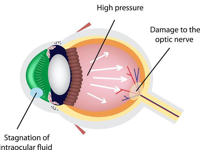Glaucoma Prevention Atlanta Vision Cataract And Laser