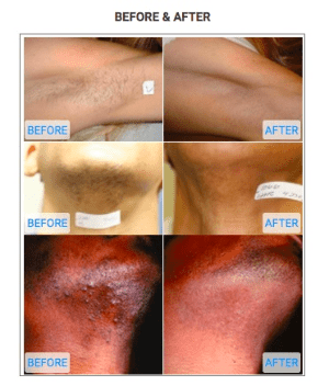 how to get rid of laser hair removal burns