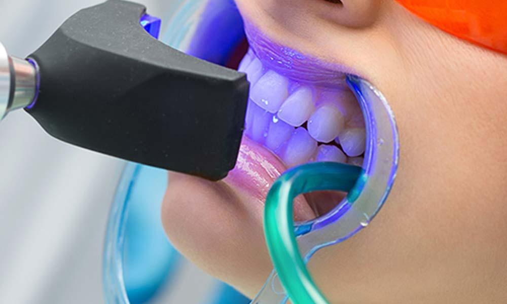 Teeth Whitening After Care Instructions Soft Touch Dentistry