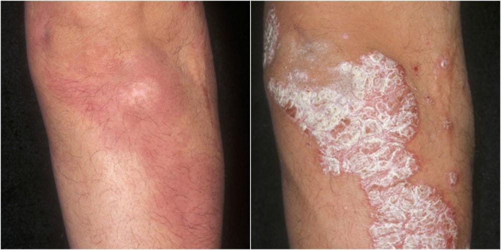 Psoriasis Under Control Pine Belt Dermatology Skin Cancer Center General Cosmetic Dermatologists