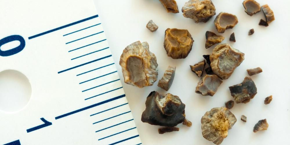 5 Myths About Kidney Stones Robert J Cornell Md Pa Urologist