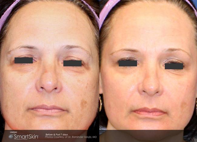 Gallery Alameda Ca Laser Skin Source