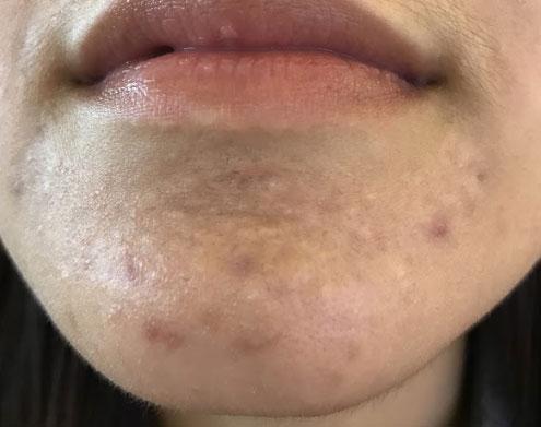 Acne Scars Los Gatos Ca Los Gatos Dermatology
