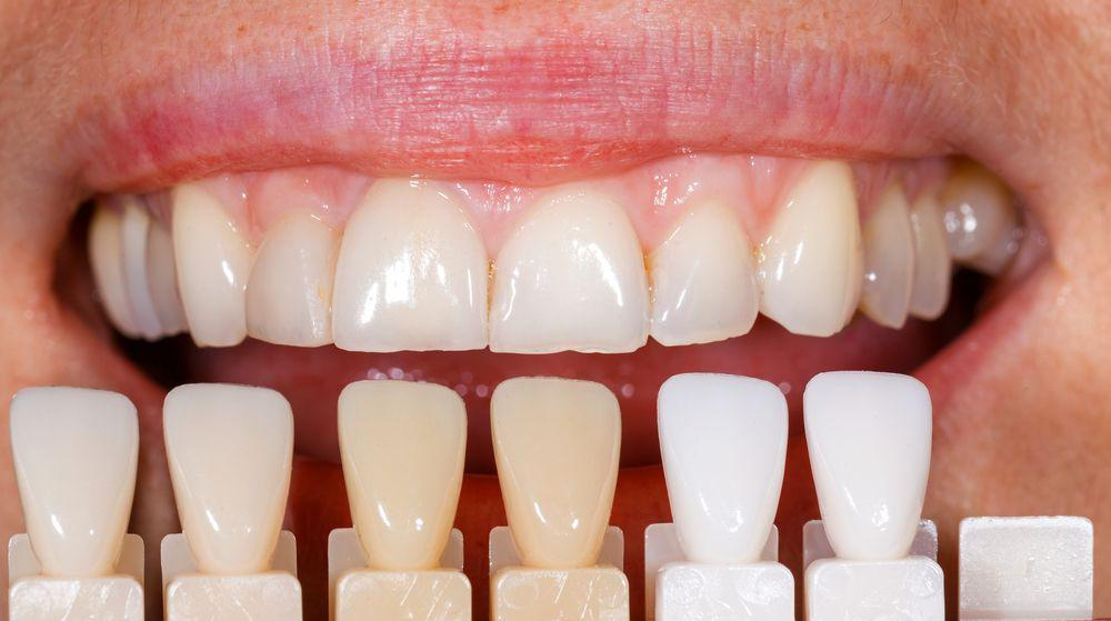 Understanding the Five Stages of Tooth Decay: Patricia Van