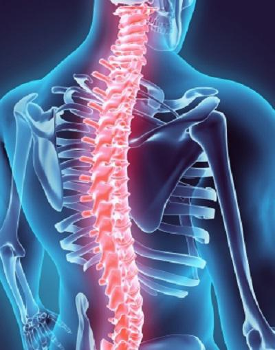 What Is Upper Back Pain And What Can Cause It Apex Medical Center Pain Management Physicians