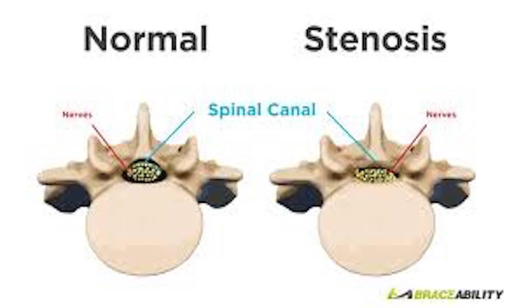 What Is Stenosis Symptoms And Causes Aligned Medical Group Pc