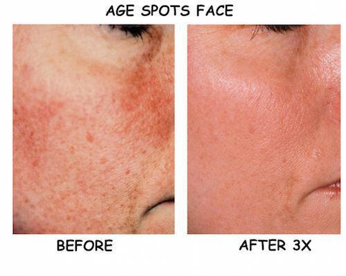 Brown Spot Removal Treatment - Greenwood Village, CO: Laser