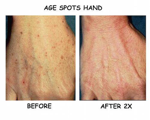 Brown Spot Removal Treatment Greenwood Village Co Laser Remedy Skin Solutions