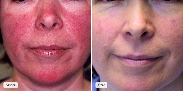 Before And After Stroudsburg Pa Comprehensive Laser And