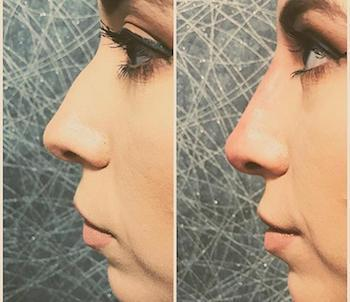 At Md Advanced Skincare Our Non Surgical Rhinoplasty Is A Safe And Effective Procedure That Uses Ha Fillers To Shape Define Smooth The Patient S Nose