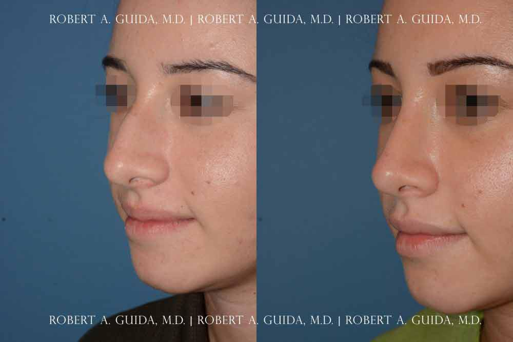 Deviated Septum vs  Bump on Nose: Robert A  Guida, MD: Plastic and