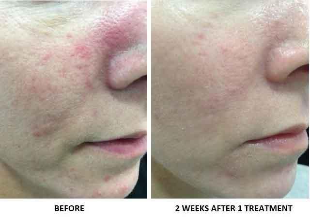 Ipl For Rosacea Bismarck Nd Pure Skin Aesthetic Laser Center