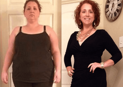Bariatric Surgery Before And After Pictures In Houston Tx Cypress