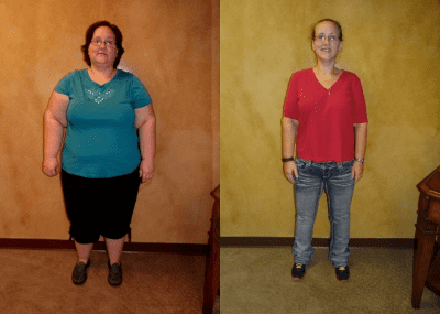 Gastric bypass dating