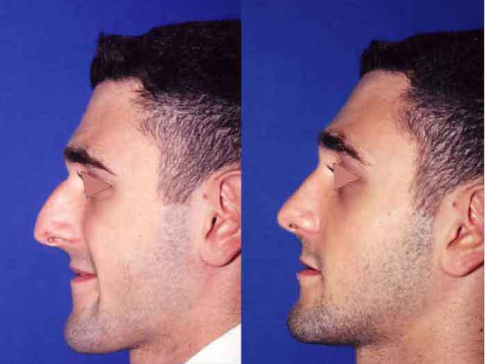 Male Rhinoplasty Before Amp After Upper East Side New York Ny