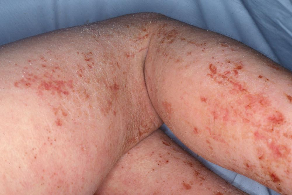 Rashes In The Pine Belt When To See A Dermatologist Pine Belt Dermatology Skin Cancer Center General Cosmetic Dermatologists