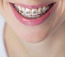 Fastbraces® Specialist - Gage Park Chicago, IL: Dental