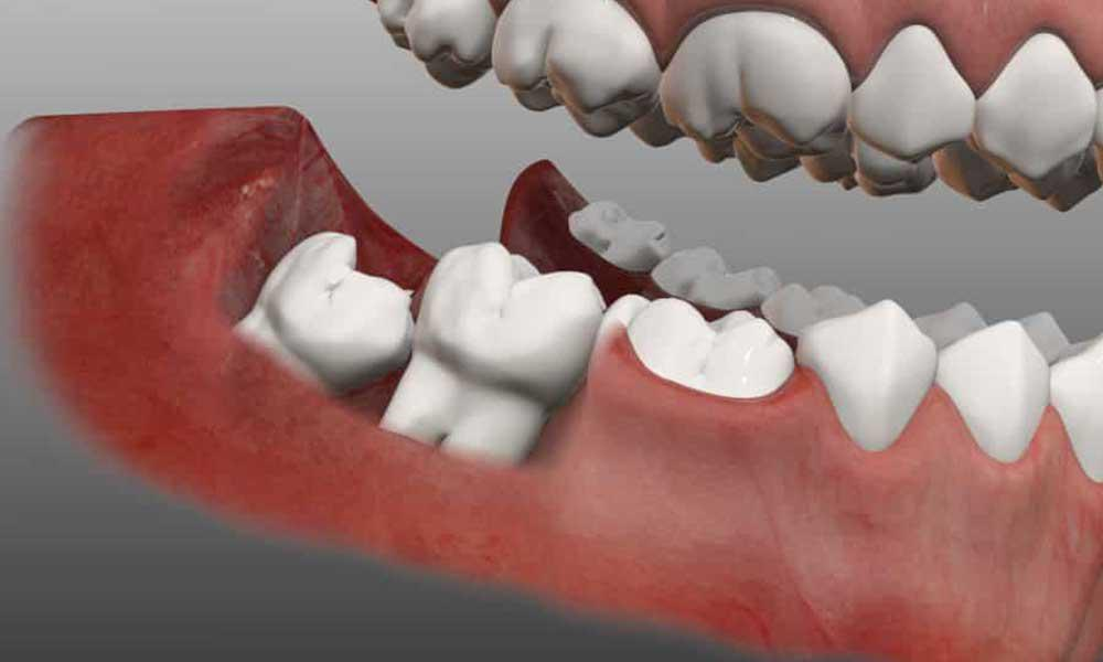 Most Important Precautions For Wisdom Teeth Removal Jeffrey J Glaser Dds Msd Pa Periodontist