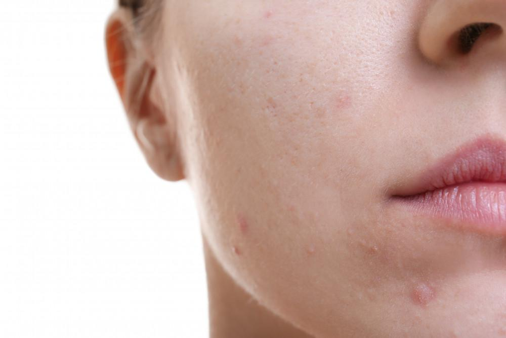 What S The Difference Between Teenage And Adult Acne Dermatology Of Boca Dermatologists