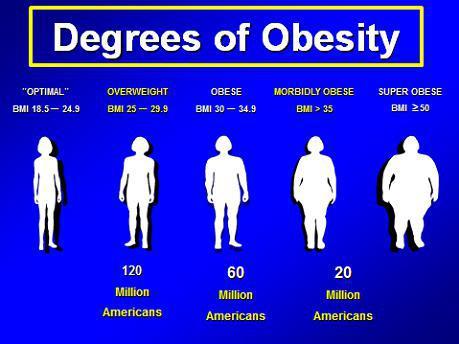 Morbid obesity is a disease santa monica ca tarzana ca