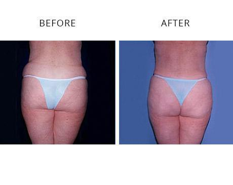 Liposuction Before After Images Torrance Ca Los Alamitos Ca