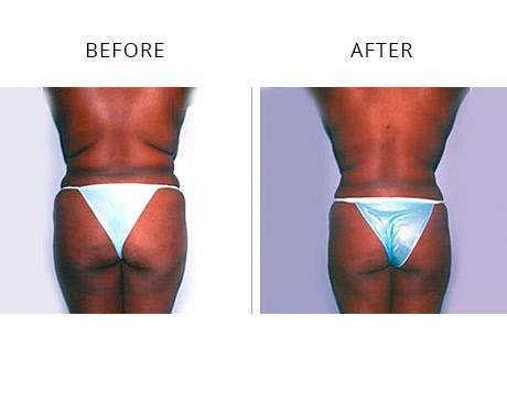 Liposuction Before & After Images - Torrance, CA & Los